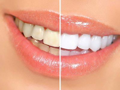 Отбеливание зубов в Пензе
